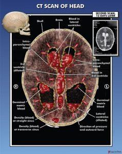 A brain scan showing a blood clot