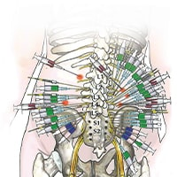 Injections diagram