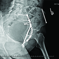 X-ray of injuries